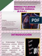 EPOC LILA2