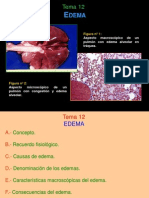 4. Edema