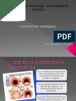 isquemia coronaria