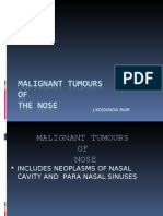 Malignant Tumors of Nose & PNAS