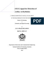 Analysis of ECG Signal for Detection of Cardiac Arrhythmias