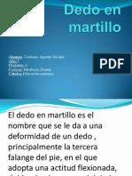 Dedo en Martillo