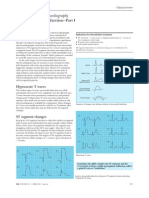ABC of Clinical Electrocardiography_Acute Myocardial Infarction_Part I