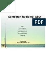 Gambaran Radiologi Gout Artritis