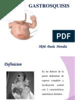 gastrosquisis y onfalocel