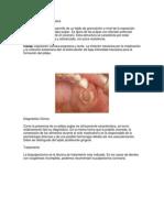 Pulpitis crónica hiperplásica