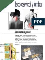Hernia de Disco Cervical y Lumbar