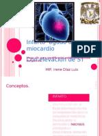 Infarto Agudo de Miocardio Con Elevacion de ST