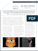 Using Cone Beam CT (CBCT) Technology to Plan Zirconia Implant Placement in a Bone Deficient Site.