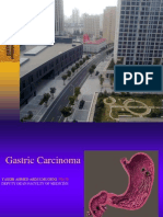 Gastric Carcinoma (No videos)د.ياسر عبدالمغني