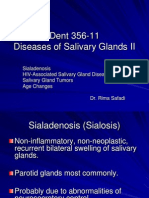 Slide 15 Diseases of Salivary Glands II