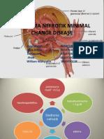 Sindroma Nefrotik Minimal Change Disease