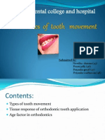 Bio Mechanics of Tooth Movement
