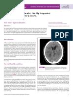 Lymphoma of the brain