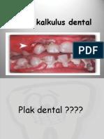 Penyuluhan Plak & Kalkulus Dental