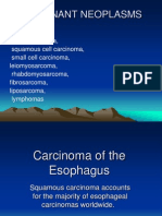 Carcinoma of the Esophagus د.محمد القطاع