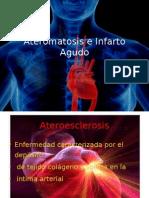 Infarto Agudo y Ateromatosis