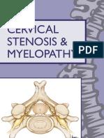Cervical Stenosis 2006