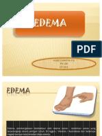 ppt Edema