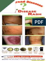 Ticks and Lyme Disease