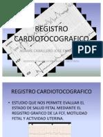 REGISTRO CARDIOTOCOGRAFICO