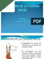 Paralisis de La Cuerda Vocal