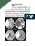 Accidente cerebrovascular isquémico