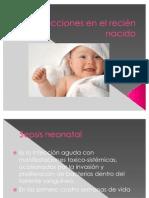 Infecciones en el recién nacido
