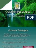 Oclusion patologica