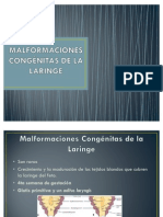 MALFORMACIONES CONGÉNITAS DE LA LARINGE