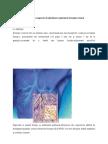 Program de recuperare în afectiunea respiratorie