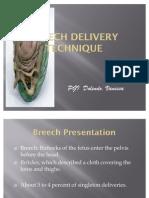 Breech Delivery Technique