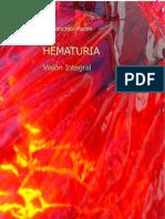 HEMATURIA Vision Integral1