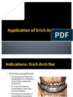 Application of Erich Arch Bar