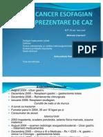 Cancer Esofagian - Pre Zen Tare Caz