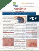 varicela y oftalmologia