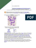 Leukemia Limphoblastik Akut