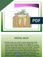 Dental Inlay Preparation