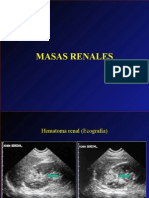 masas_renales.imagen diagnóstica