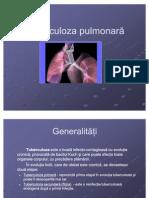 Tuberculoza pulmonară