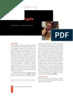 Adenomegalia