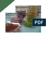 Chapitre I Introduction a La Microbiologie