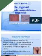 Tina Inguinal EXPO