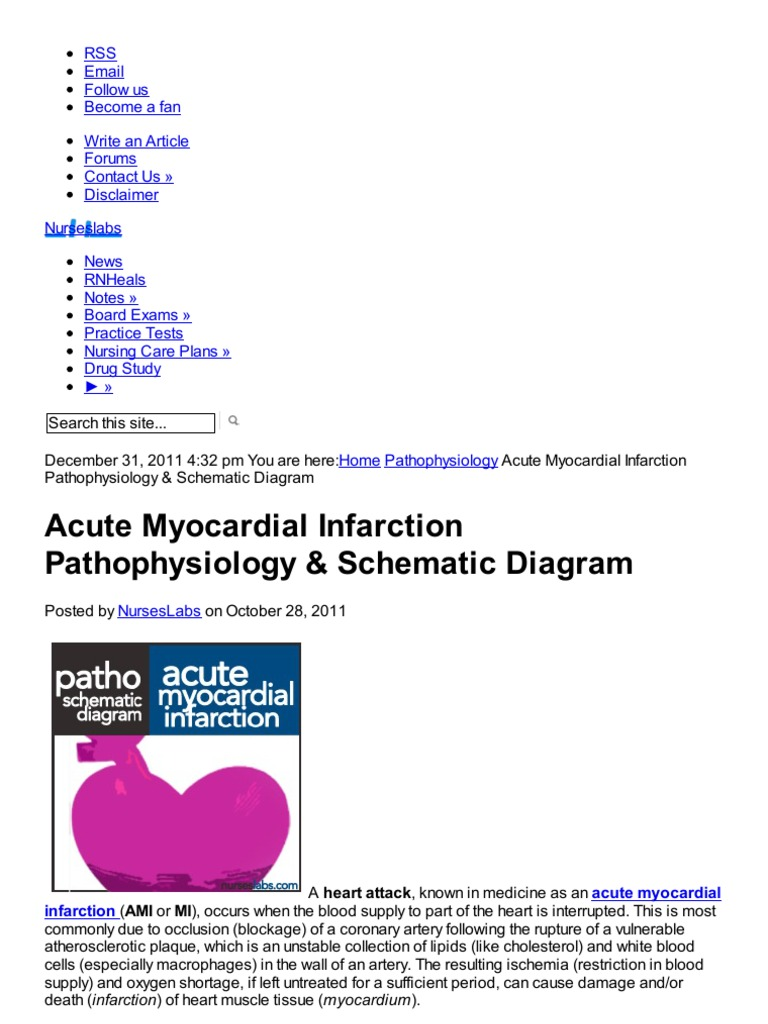 Acute Myocardial Infarction Pathophysiology