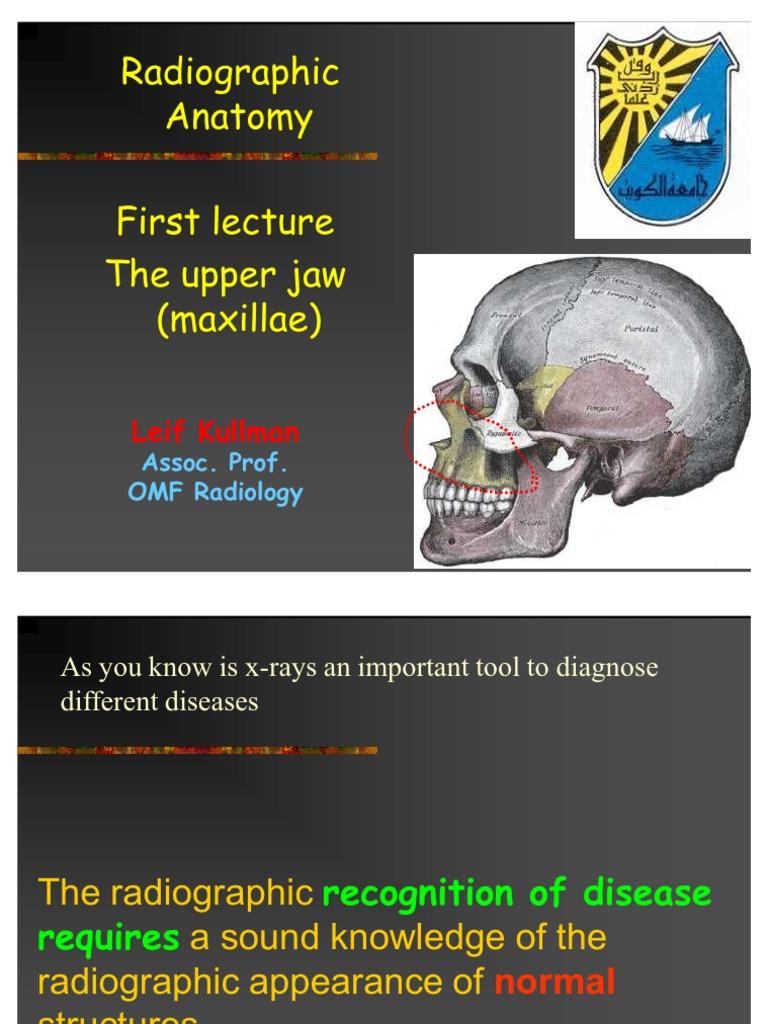 02 Radio Anatomy 1 Dentistry) | Dental Anatomy | Radiography