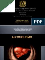 Daño hepático por consumo de alcohol.