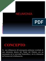 Neumonia en Paciente Pediatrico