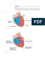 Tetralogy of Fallot in Adults