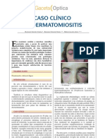 caso dermatomiositis