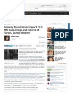 Secretly Forced Brain Implants Part II - Www-examiner-com